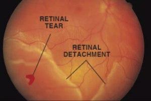 retinal tears