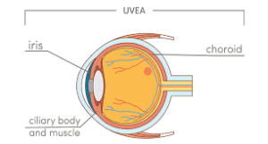 Choroidal Detachment pic